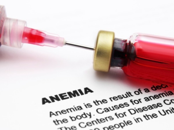 Important Healthy Checkup # 19: Anaemia test