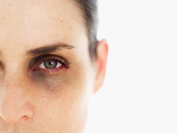 Healthy Weekend Idea # 18: Wipe off your dark circles