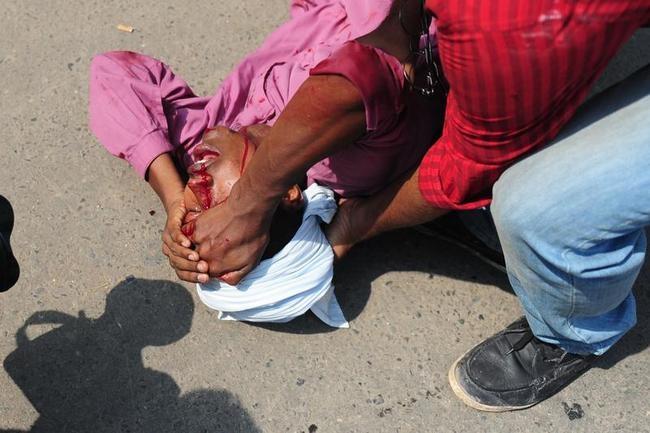 Bangladesh Islamists Clash with Police: PICS