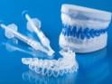 Dental care: 20 Tips for White Teeth : Teeth whitening kits