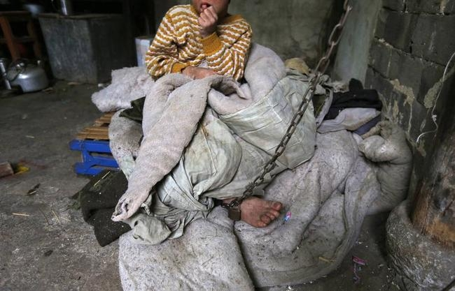 A boy sits as he is chained to a pillar at his home in Zhejiang province