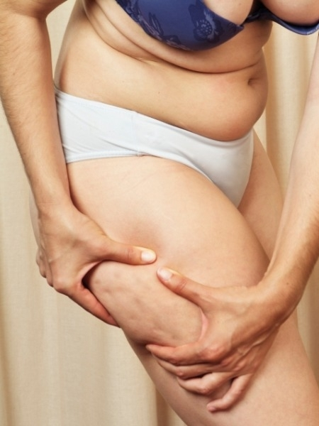 Skincare: What is Cellulite, Causes and Treatment :Treatment