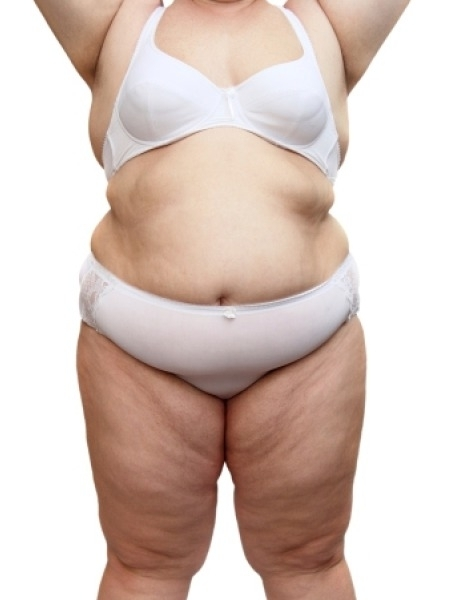 Skincare: What is Cellulite, Causes and Treatment