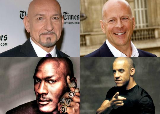 bald celebs