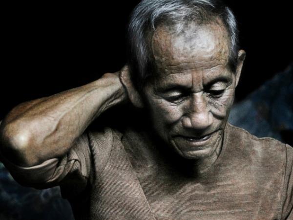 Parkinson Disease, Causes, Symptoms and Treatment What is Parkinson disease?
