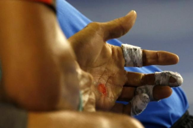 An injury is seen on the hand of Rafael Nadal of Spain during his men