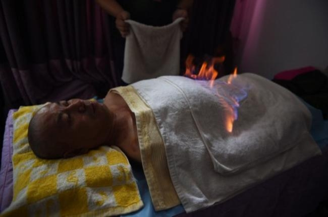 Fire Therapy to Treat Illness in China: PICS