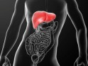 Non-alcoholic Fatty Liver Disease: Causes, Stages and Prevention Cirrhosis