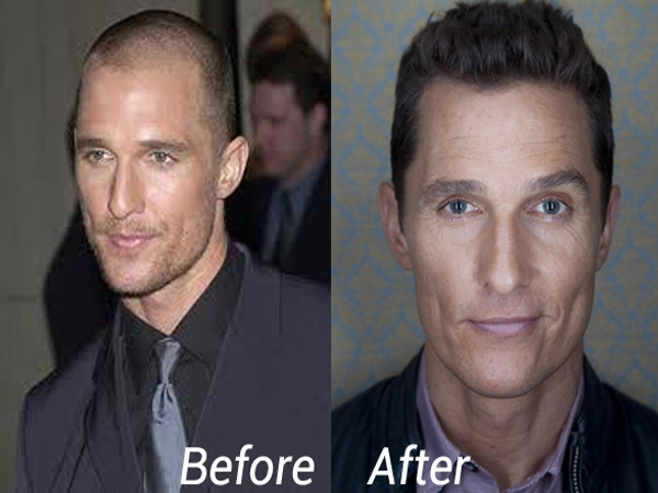 Celebrities Who Fought Hair Loss With Hair Transplantion